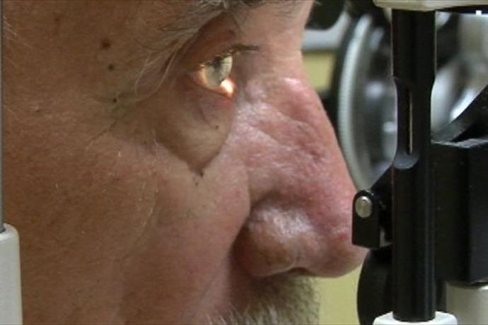 Cataract Myths_7656278617153358068