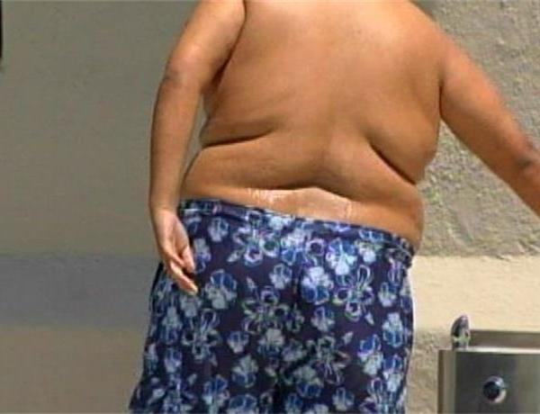 Obesity & BPA_-6770673828427119384