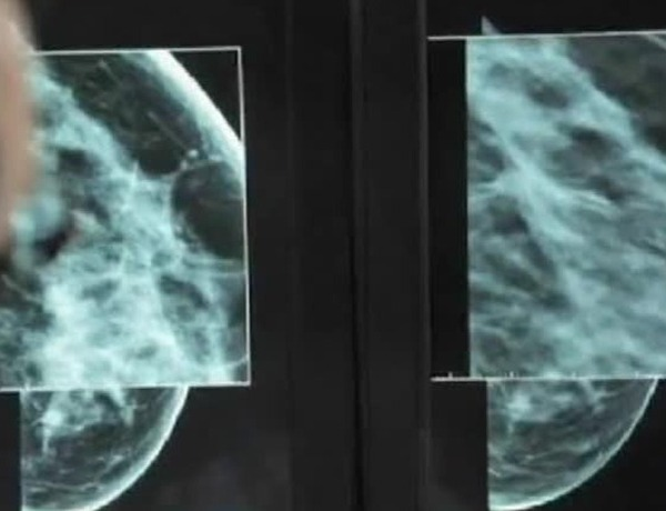 Texas Breast Specialists Brings 3D Mammography to the Area_2115411766433760590
