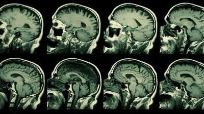 MRI--X-ray--brain-jpg_20160204154002-159532