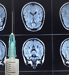 Vaccine May Help Treat Brain Cancer _20160114203542-159532