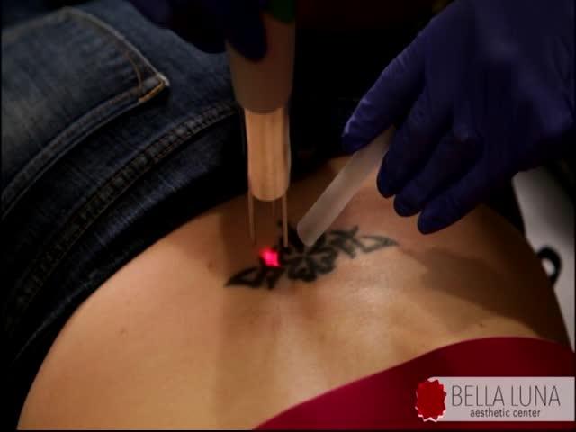 Lose the Tattoo-_74612652