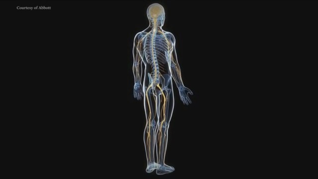 Treat Chronic Pain with Proven Neurostimulation Therapy