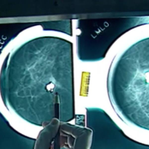 Study: Breast Cancer Testing Guidelines 20Yrs Out Of Date