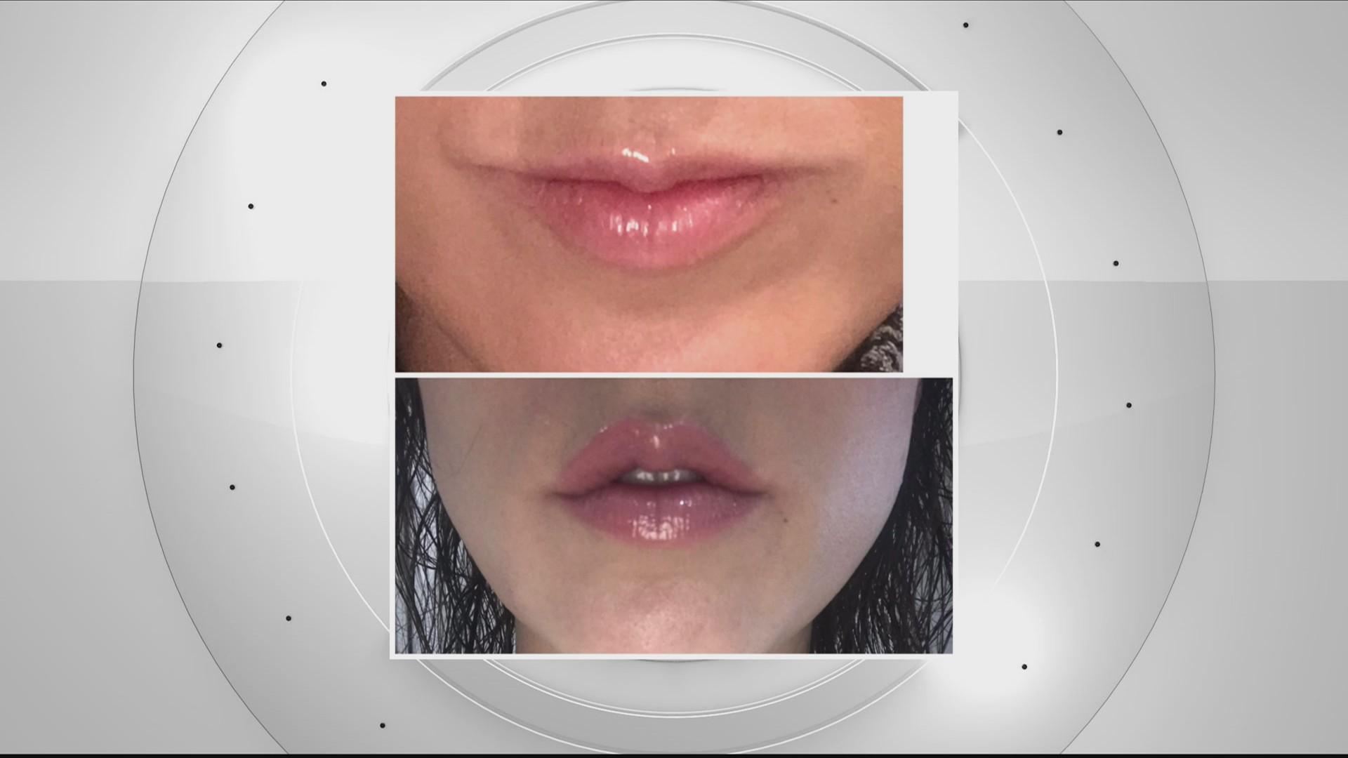 Operate Like A Champion: Lip Filler vs. Lip Flip