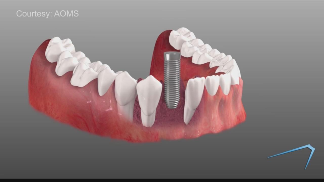 klassieke schoenen nieuwe specials het winkelen Operate Like A Champion: Dental Implants